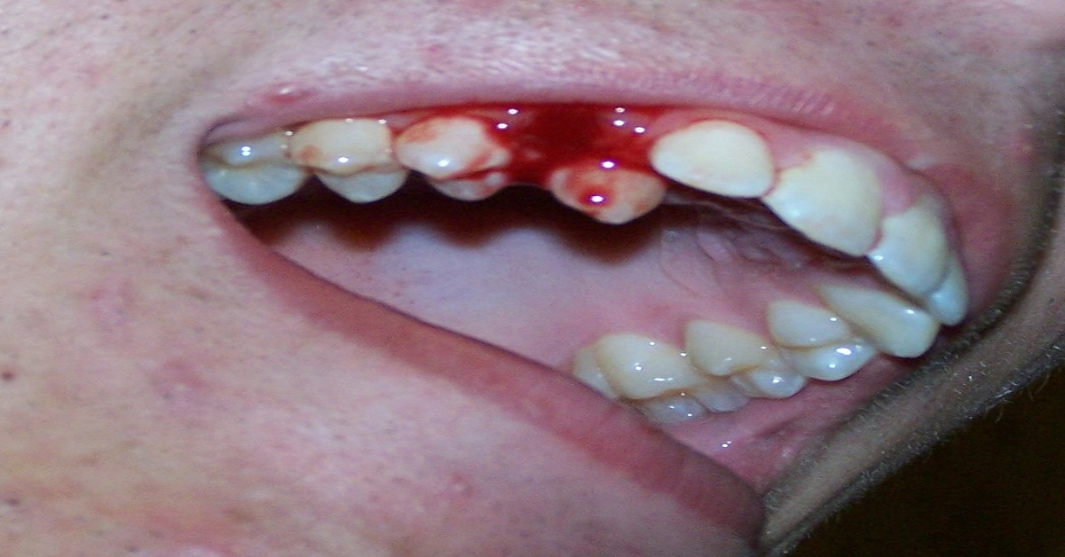When Should You Consult a Dentist for Bleeding Gums?