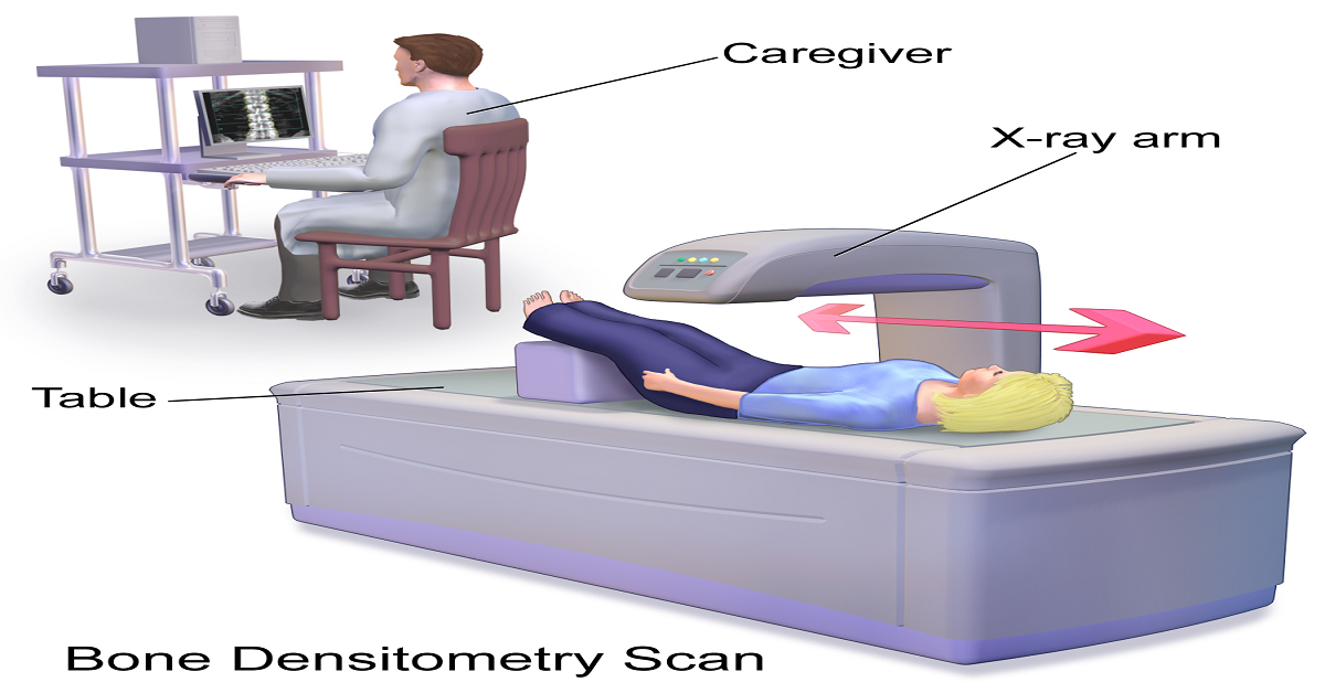 What is Bone Densitometry?What are the Benefits of Bone Densitometry Test?