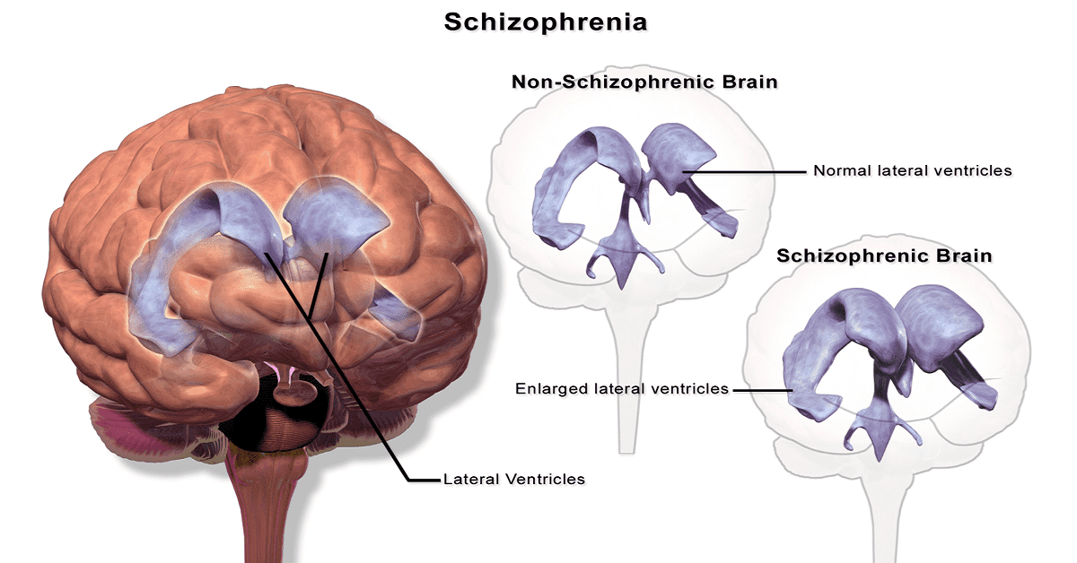 What Is Schizophrenia? What Are Schizophrenia Symptoms?