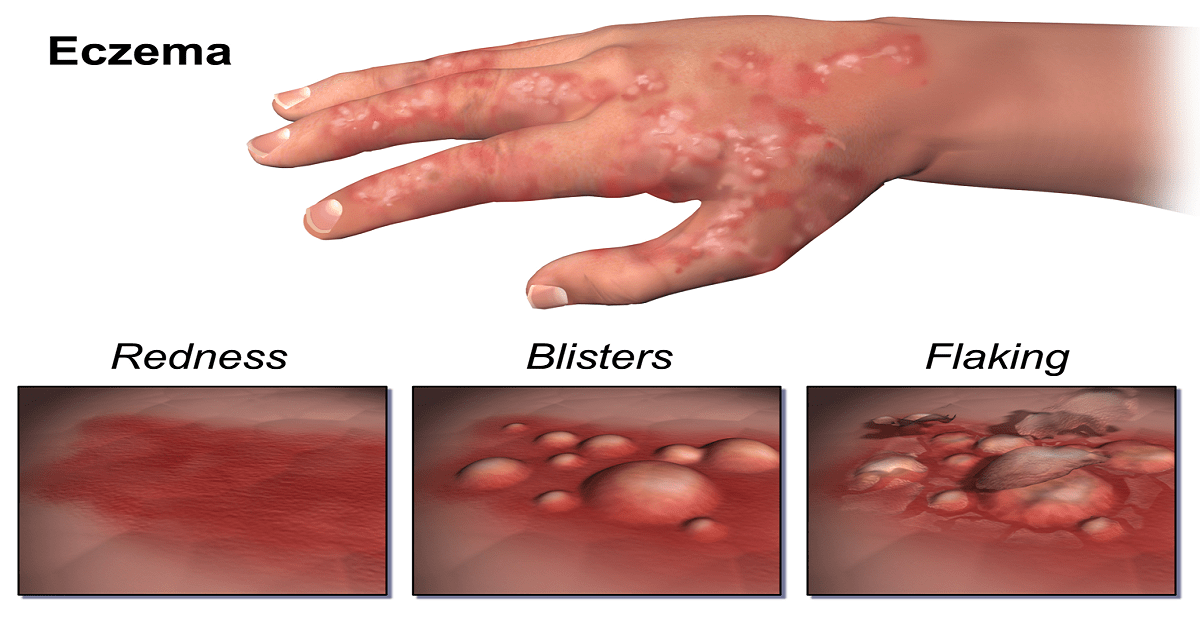 How to Get Rid of Eczema? Know the Preventive tips to Cure Eczema