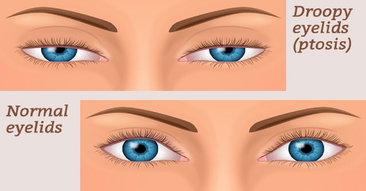 Eyelid Problem in Kids (Ptosis) - Symptoms,Causes,Treatment