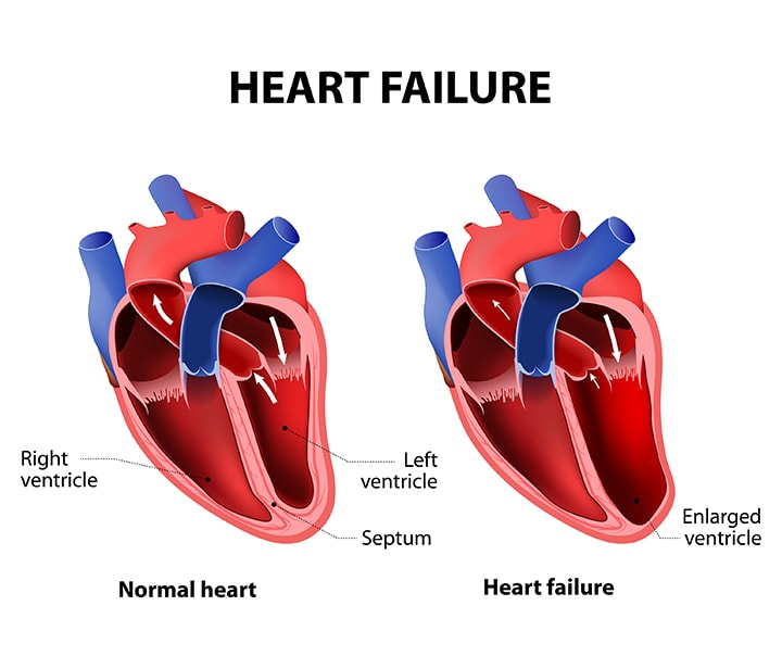 Understanding Symptoms and Stages of Heart Failure