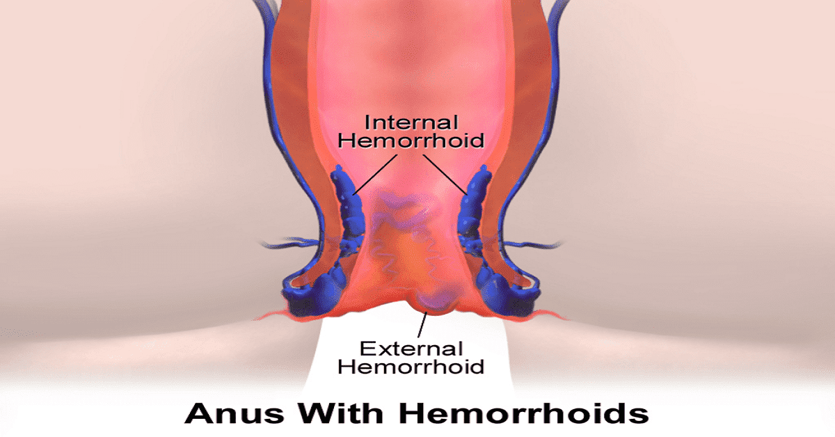 Piles (Hemorrhoids): Causes, Symptoms, Treatment and Diet