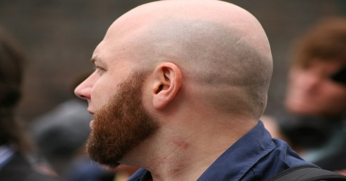Home Made tips for hair growth on Bald Head