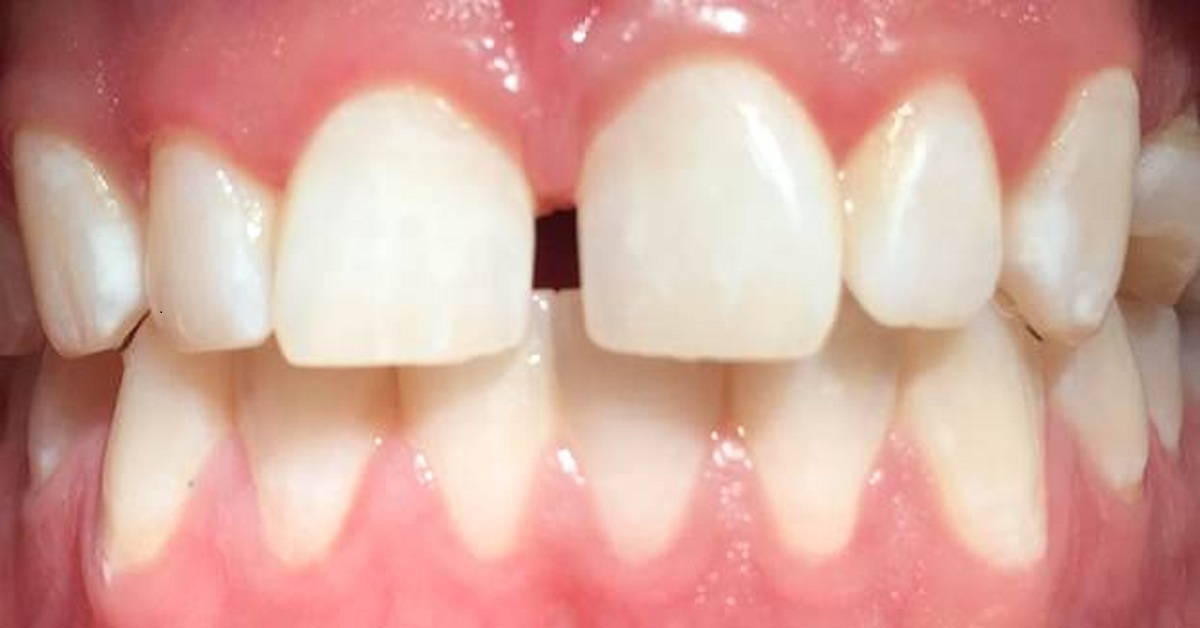 What is Dental OPG?Is Dental OPG Different from the Regular X-ray Machine?